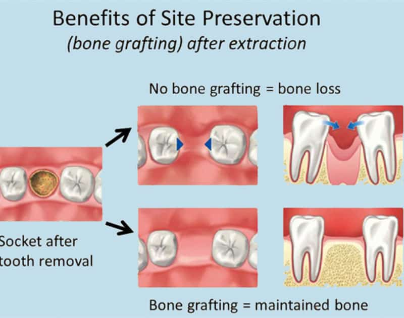 Oral Surgery Bone Grafts Lake Lanier Smiles Buford Ga