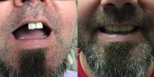 BEFORE & AFTER COMPLETE DENTURE